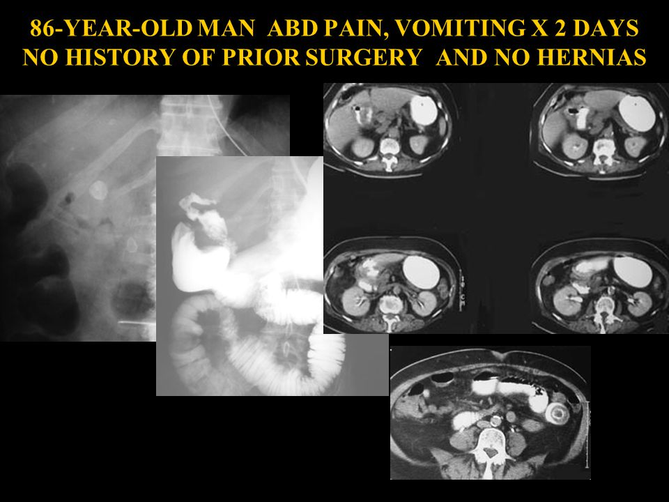 86-YEAR-OLD MAN ABD PAIN, VOMITING X 2 DAYS NO HISTORY OF PRIOR SURGERY AND NO HERNIAS