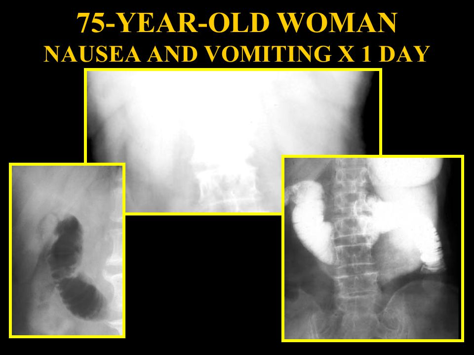 75-YEAR-OLD WOMAN NAUSEA AND VOMITING X 1 DAY