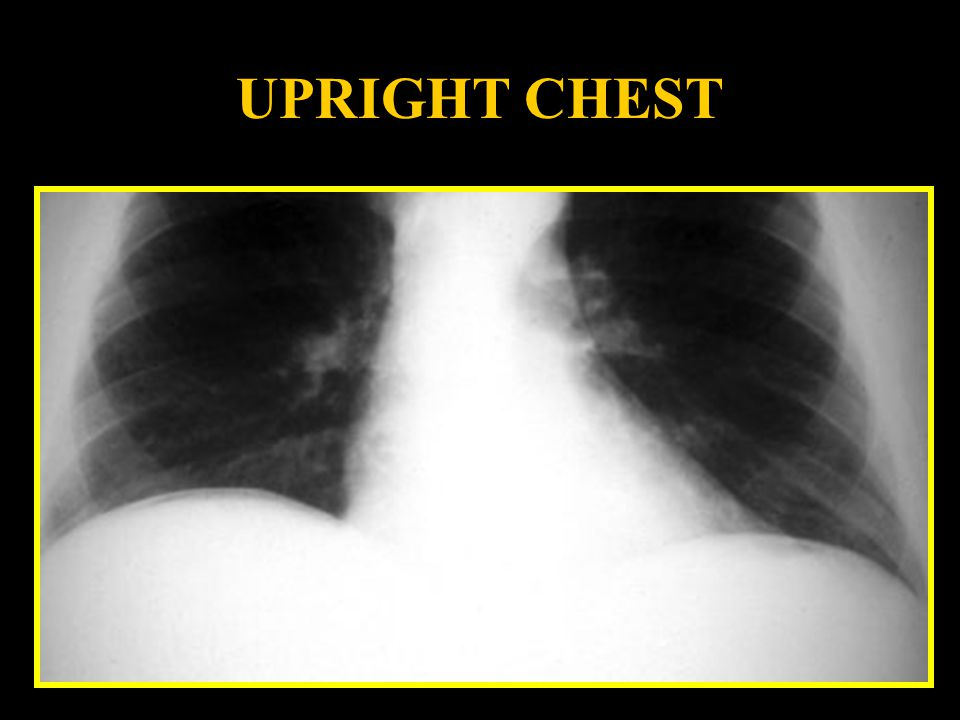 UPRIGHT CHEST