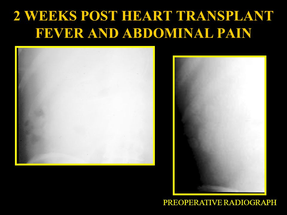 2 WEEKS POST HEART TRANSPLANT FEVER AND ABDOMINAL PAIN
