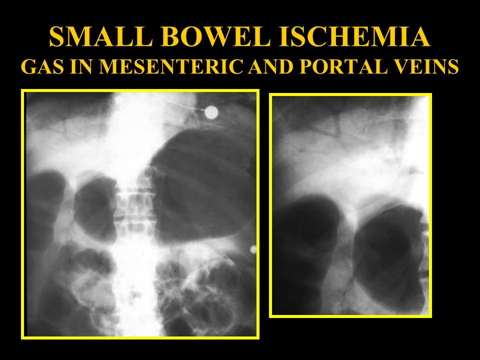 SMALL BOWEL ISCHEMIA GAS IN MESENTERIC AND PORTAL VEINS