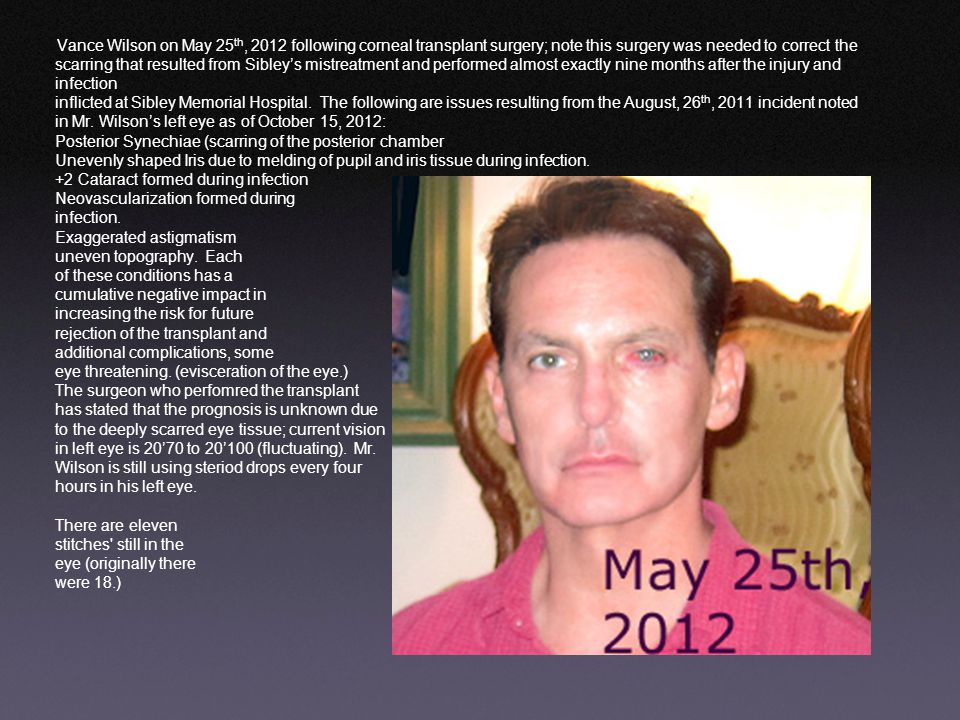 Vance Wilson on May 25th, 2012 following corneal transplant surgery; note this surgery was needed to correct the scarring that resulted from Sibley's mistreatment and performed almost exactly nine months after the injury and infection inflicted at Sibley Memorial Hospital.
