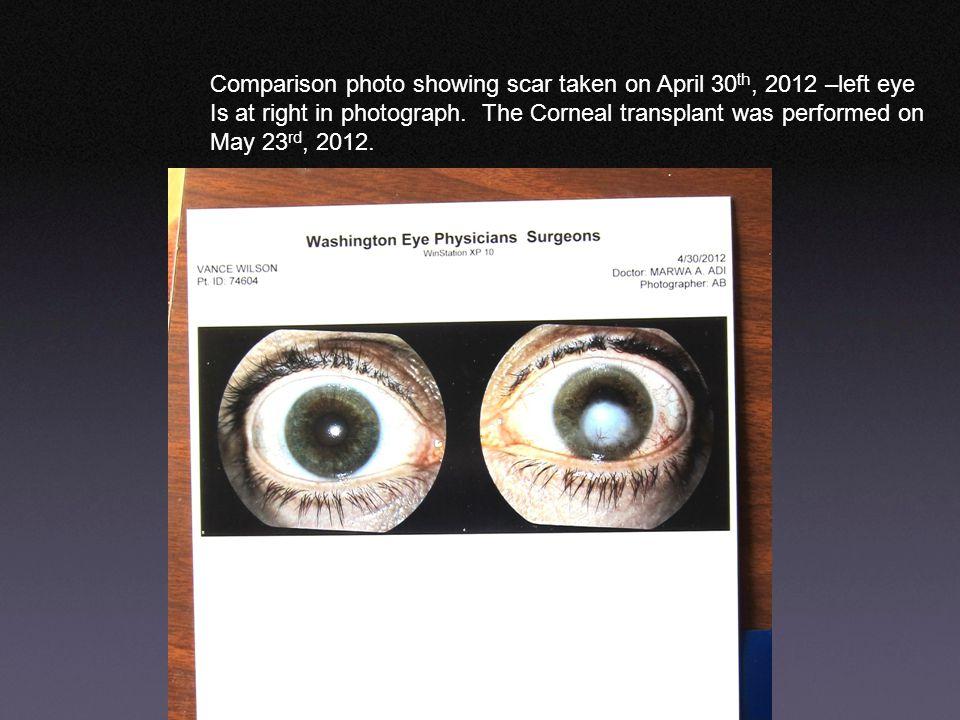 Comparison photo showing scar taken on April 30th, 2012 –left eye
