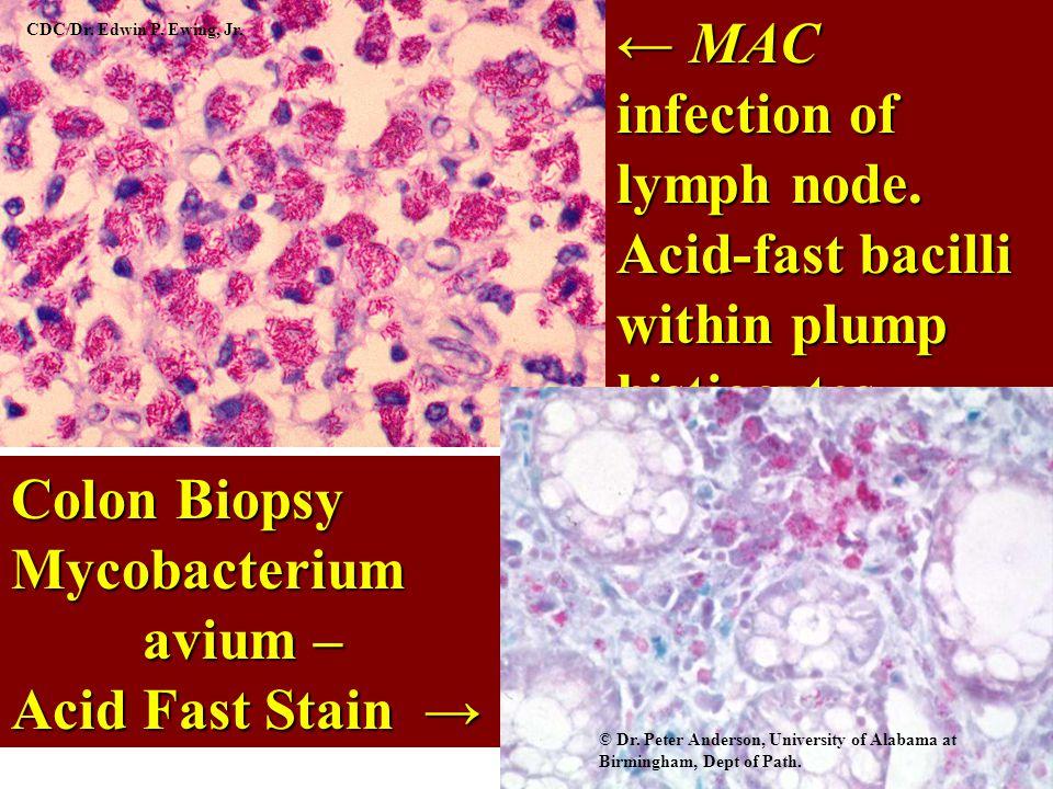← MAC infection of lymph node.