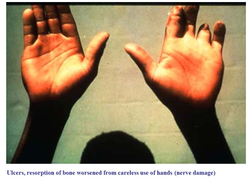 Ulcers, resorption of bone worsened from careless use of hands (nerve damage)