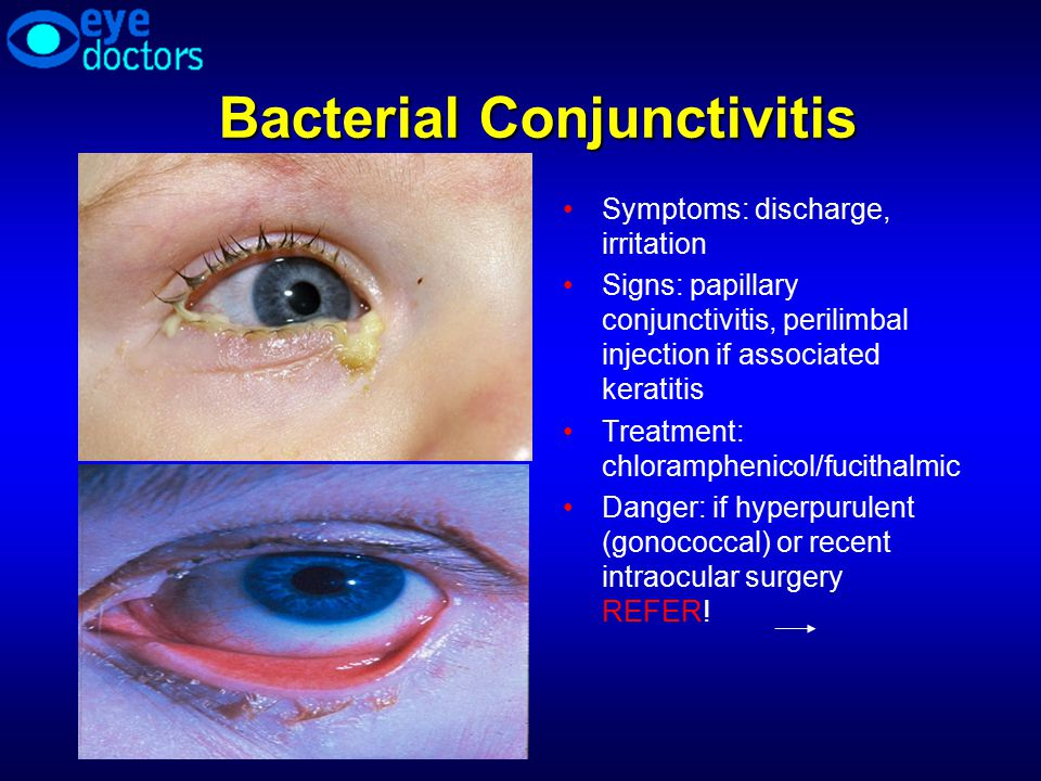 How To Handle Common Eye Problems In Your Practice  Ppt. Sample Stormwater Pollution Prevention Plan. Insurance For In Vitro Fertilization. How Often Is Frequent Urination. Target Customer Analysis Best Credit Services. Eating Disorder Counselor Online Tv Providers. Sample Web Analytics Report Long Put Option. Life Insurance For Children I Feel Your Pain. Home Security Systems Walmart