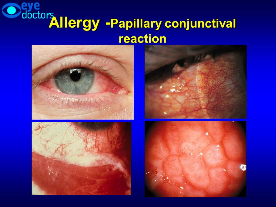 Allergy -Papillary conjunctival reaction