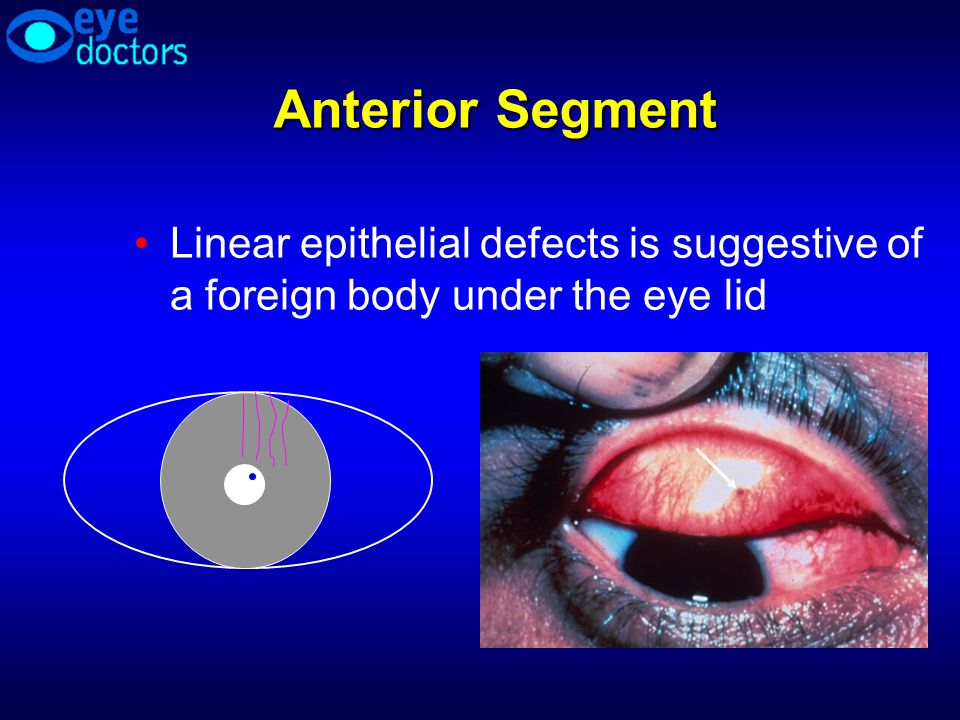 Anterior Segment Linear epithelial defects is suggestive of a foreign body under the eye lid