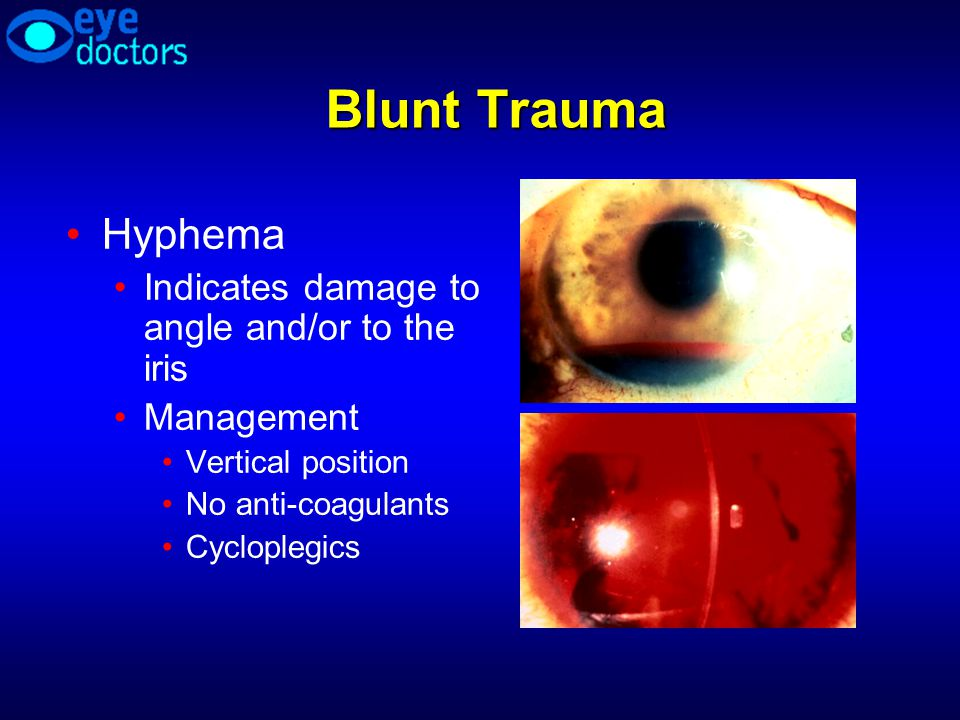 Blunt Trauma Hyphema Indicates damage to angle and/or to the iris