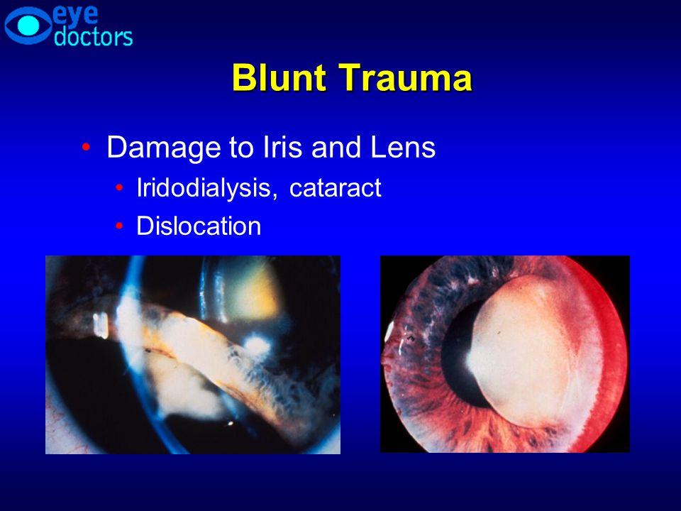 Blunt Trauma Damage to Iris and Lens Iridodialysis, cataract