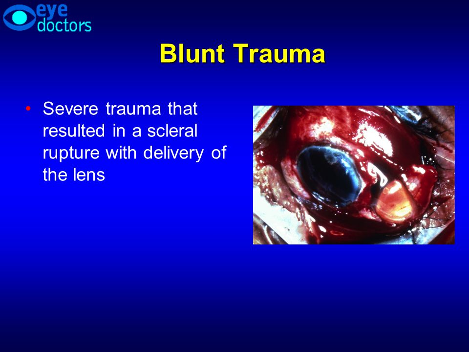 Blunt Trauma Severe trauma that resulted in a scleral rupture with delivery of the lens