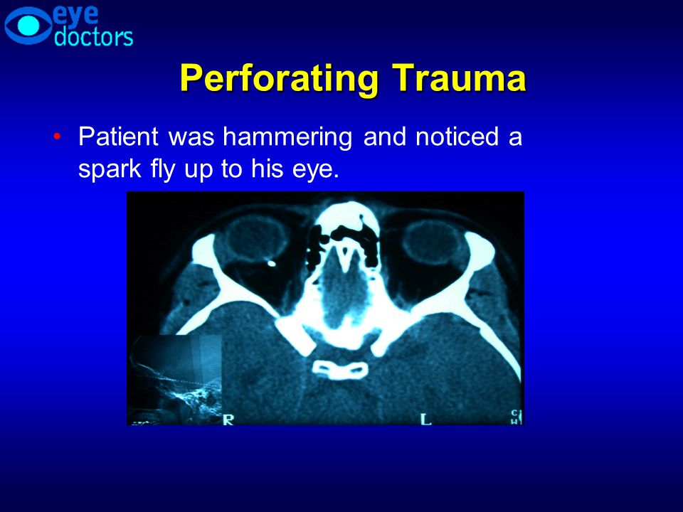 Perforating Trauma Patient was hammering and noticed a spark fly up to his eye.