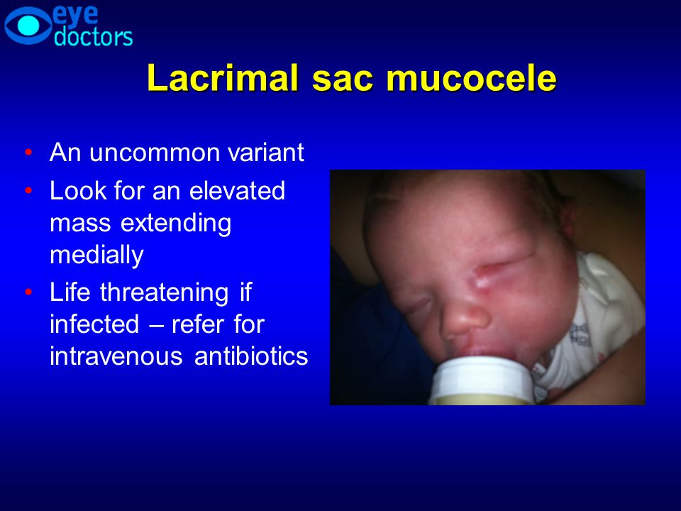 Lacrimal sac mucocele An uncommon variant