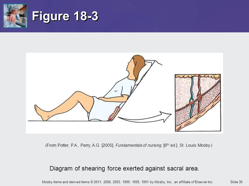 Diagram of shearing force exerted against sacral area.