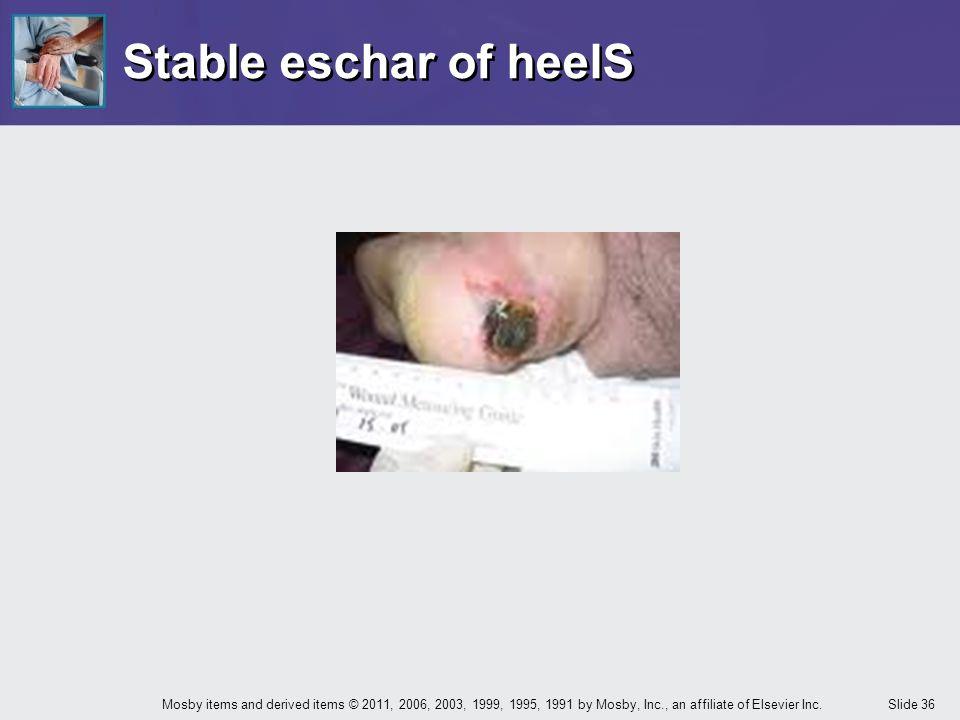 Stable eschar of heelS