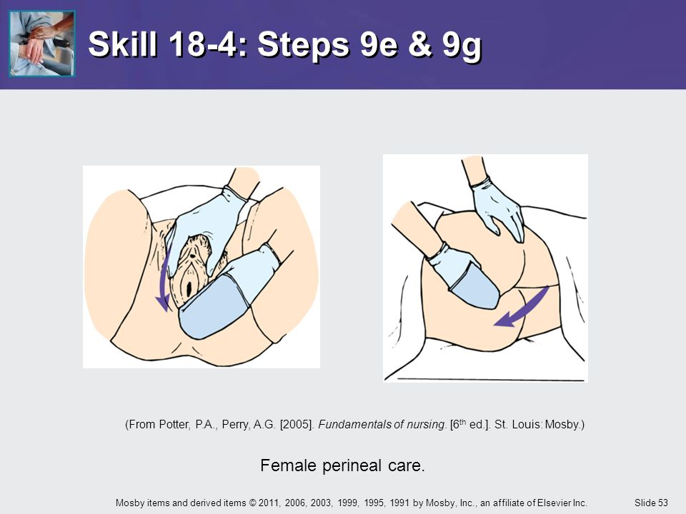 Skill 18-4: Steps 9e & 9g Female perineal care.