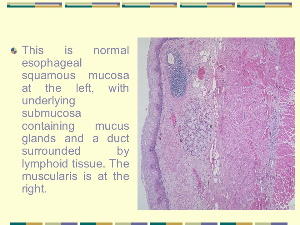 This is normal esophageal squamous mucosa at the left, with underlying submucosa containing mucus glands and a duct surrounded by lymphoid tissue.