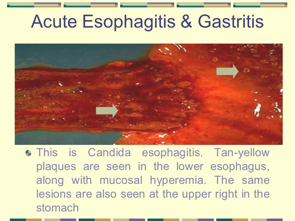 Acute Esophagitis & Gastritis