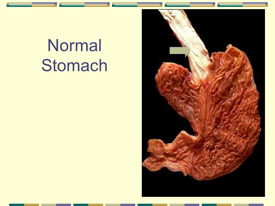 Normal Stomach