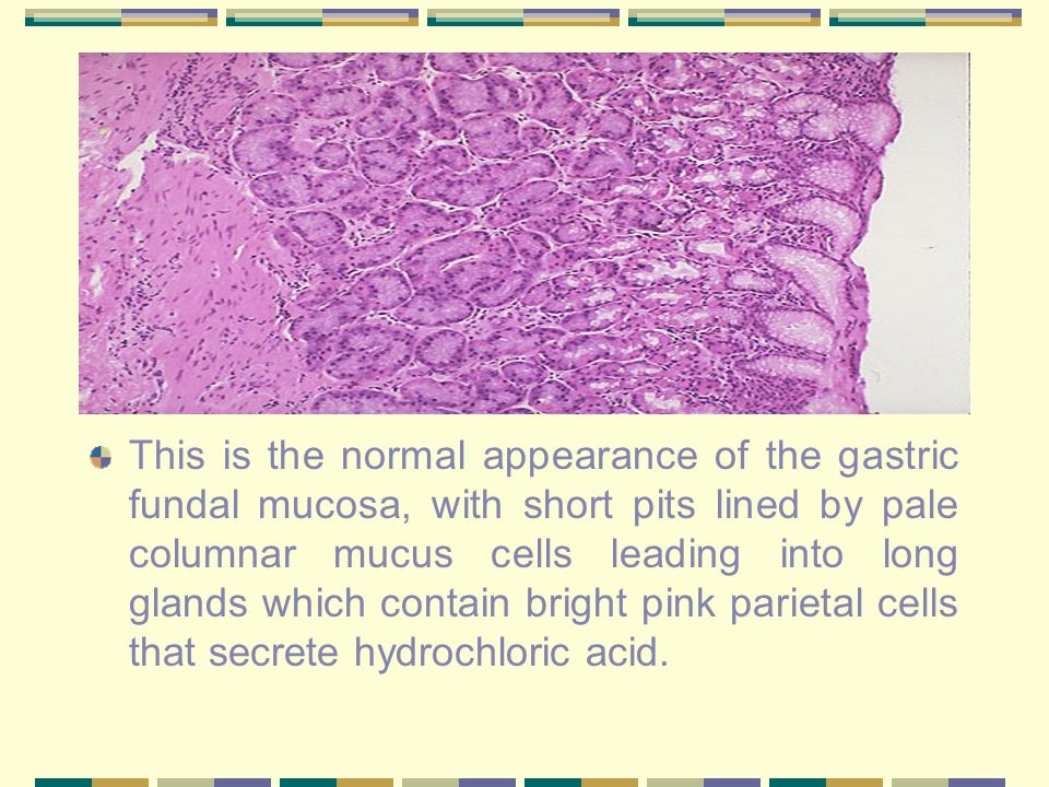 This is the normal appearance of the gastric fundal mucosa, with short pits lined by pale columnar mucus cells leading into long glands which contain bright pink parietal cells that secrete hydrochloric acid.