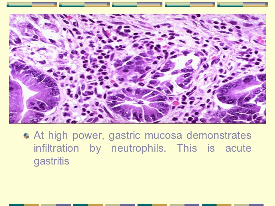 gastritis biopsy test cancer.jpg