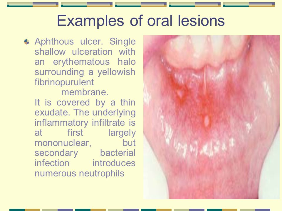 Examples of oral lesions