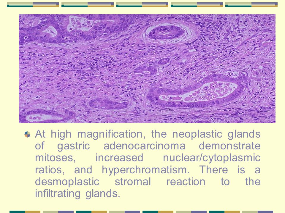 At high magnification, the neoplastic glands of gastric adenocarcinoma demonstrate mitoses, increased nuclear/cytoplasmic ratios, and hyperchromatism.