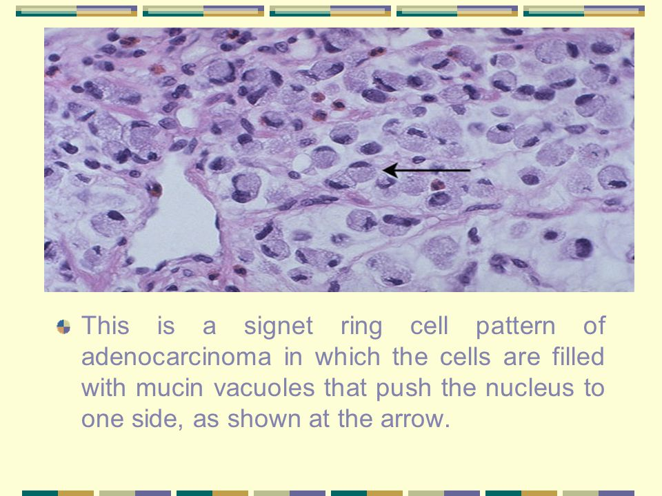 This is a signet ring cell pattern of adenocarcinoma in which the cells are filled with mucin vacuoles that push the nucleus to one side, as shown at the arrow.