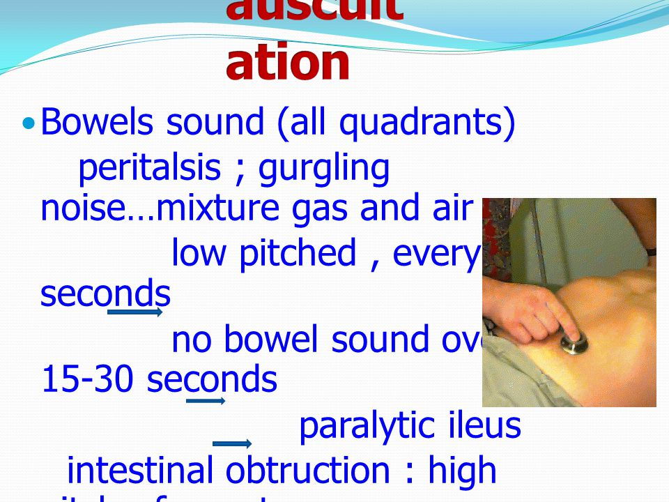 auscultation Bowels sound (all quadrants)