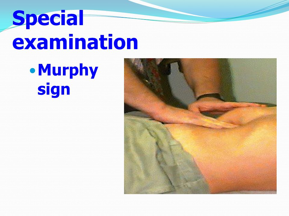 Special examination Murphy sign