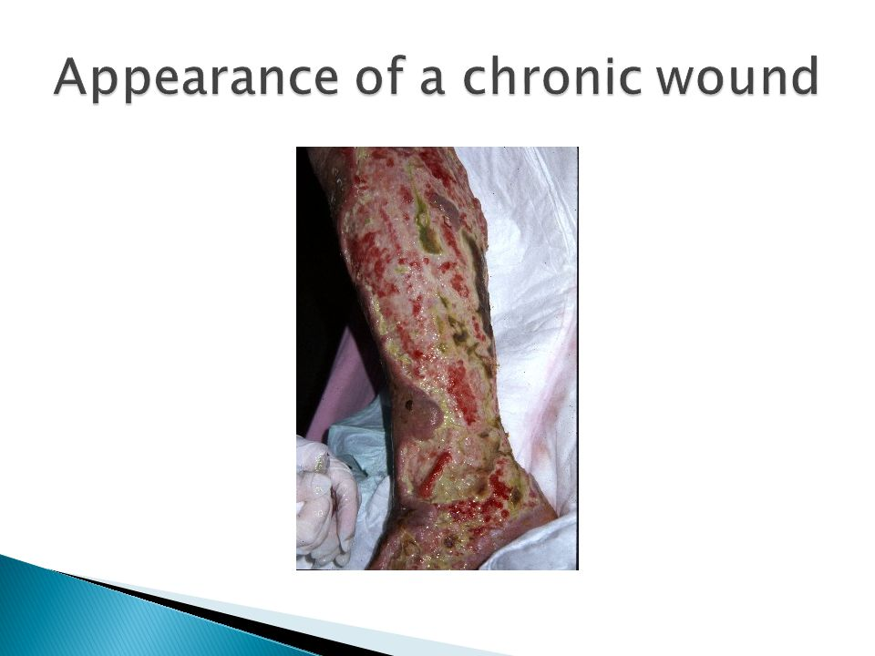 Appearance of a chronic wound