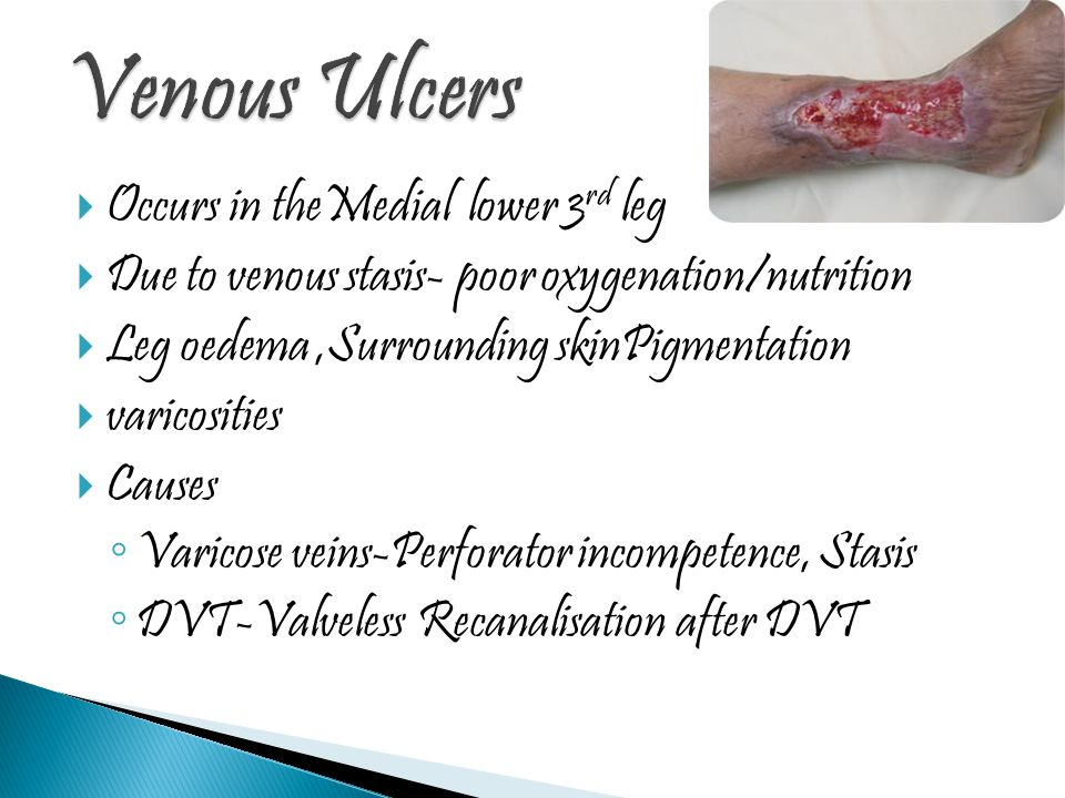 Venous Ulcers Occurs in theMedial lower 3rd leg