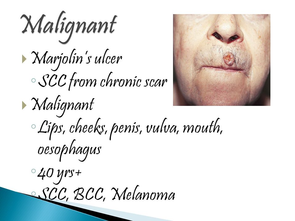 Malignant Marjolin's ulcer SCC from chronic scar Malignant