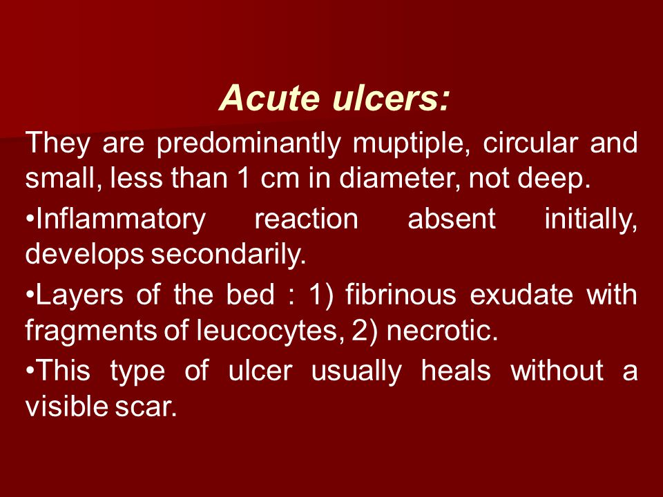 Acute ulcers: They are predominantly muptiple, circular and small, less than 1 cm in diameter, not deep.