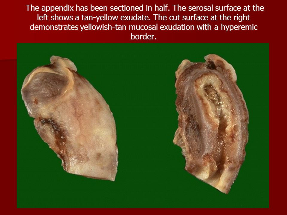 The appendix has been sectioned in half