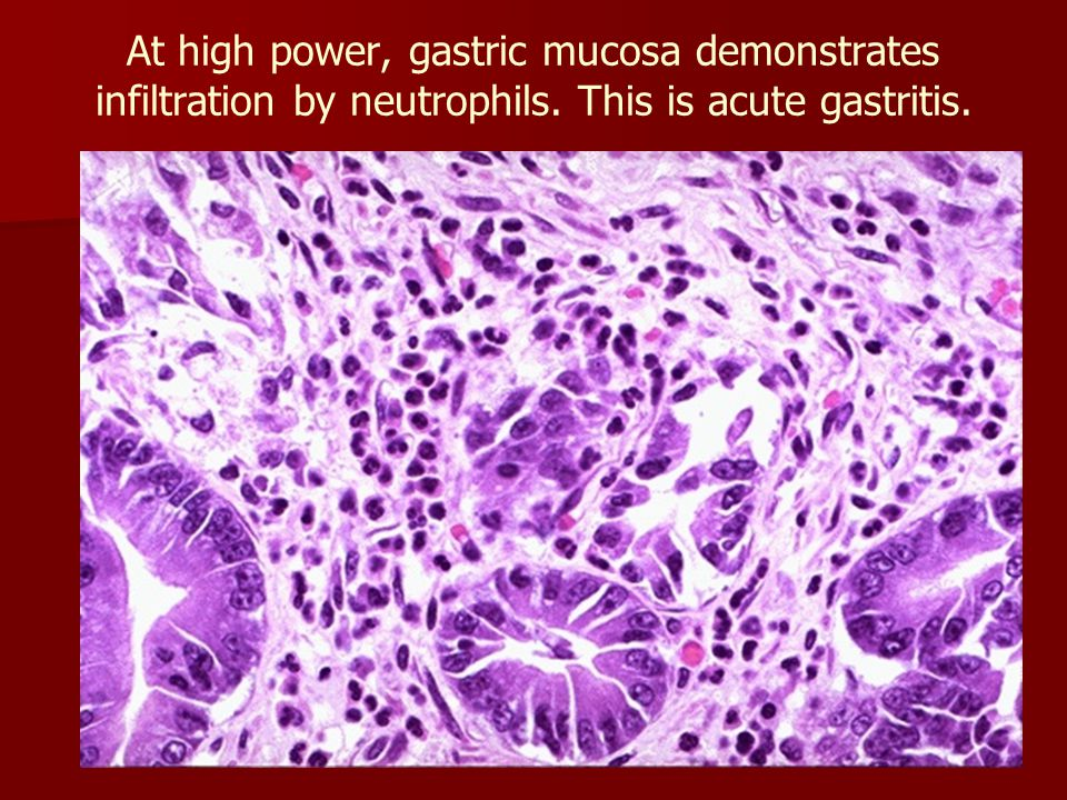 At high power, gastric mucosa demonstrates infiltration by neutrophils
