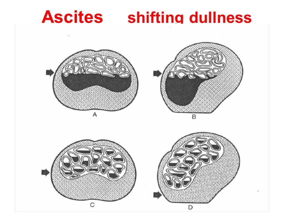 Ascites shifting dullness