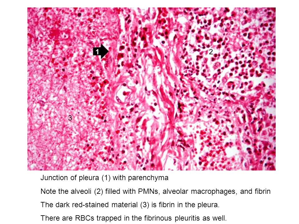 Junction of pleura (1) with parenchyma