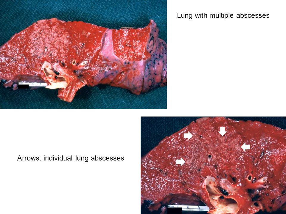 Lung with multiple abscesses