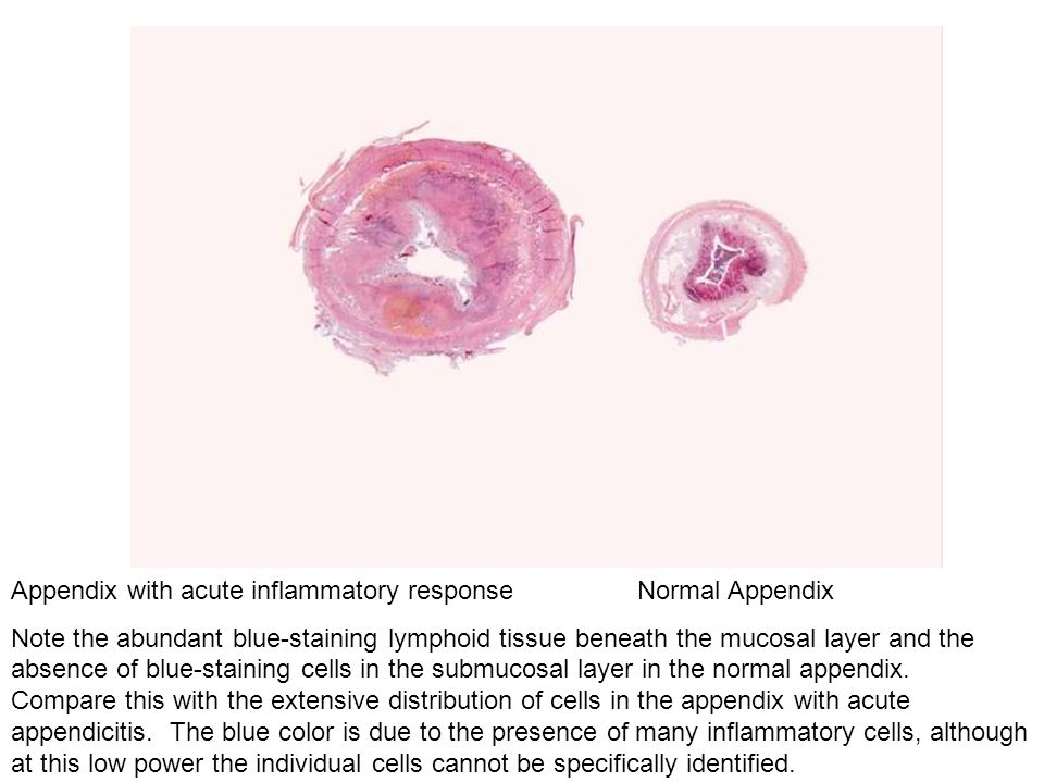 Appendix with acute inflammatory response Normal Appendix