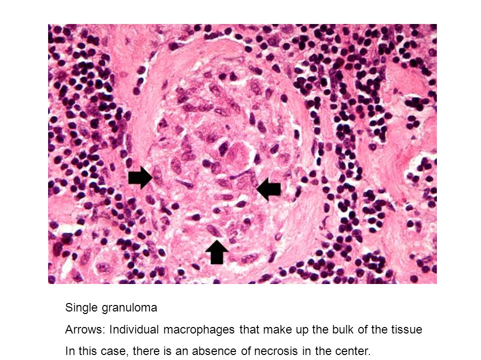 Single granuloma Arrows: Individual macrophages that make up the bulk of the tissue.
