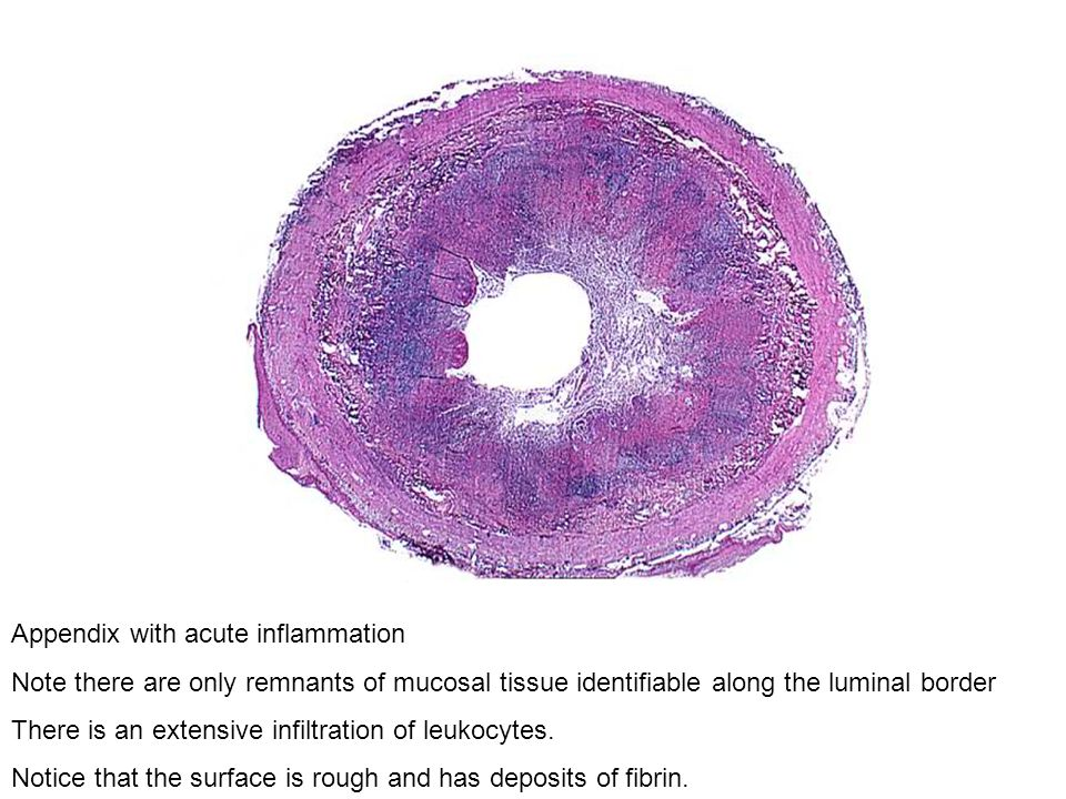 Appendix with acute inflammation