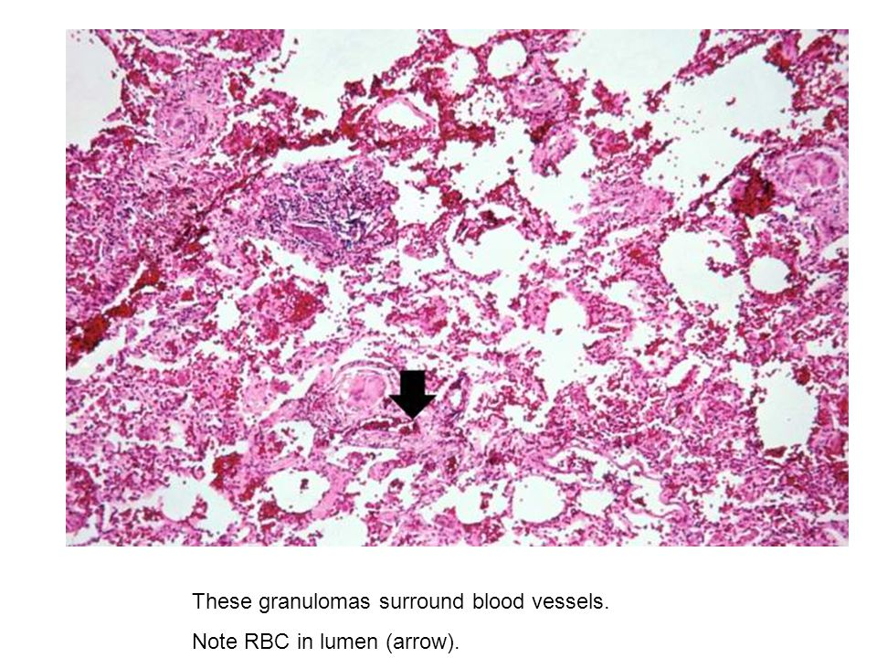 These granulomas surround blood vessels.