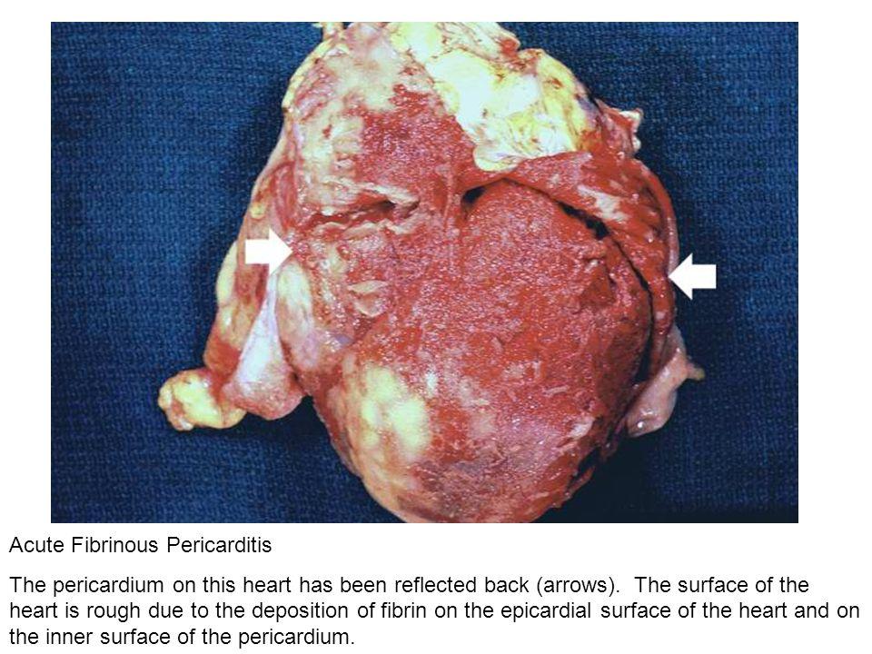 Acute Fibrinous Pericarditis
