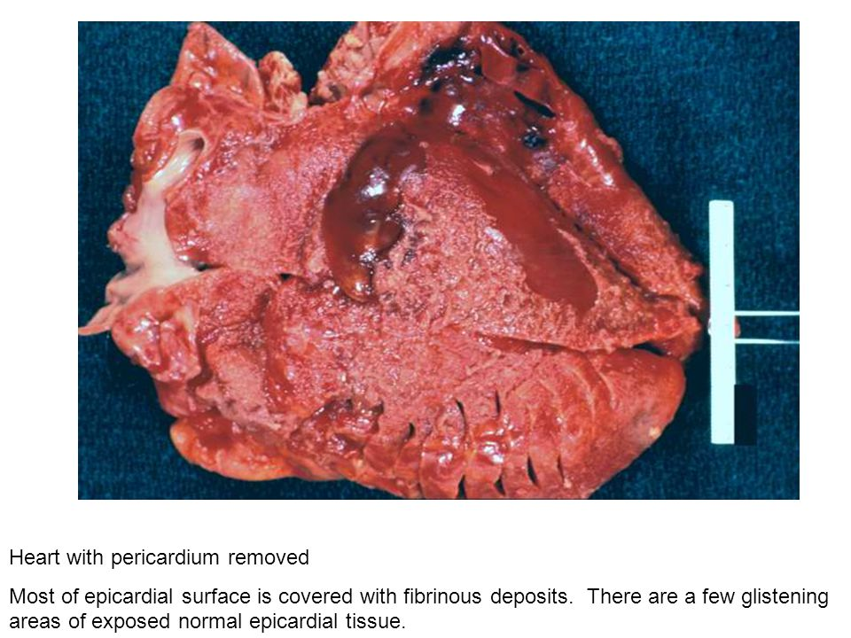 Heart with pericardium removed