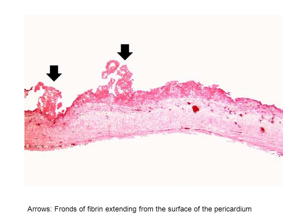Arrows: Fronds of fibrin extending from the surface of the pericardium