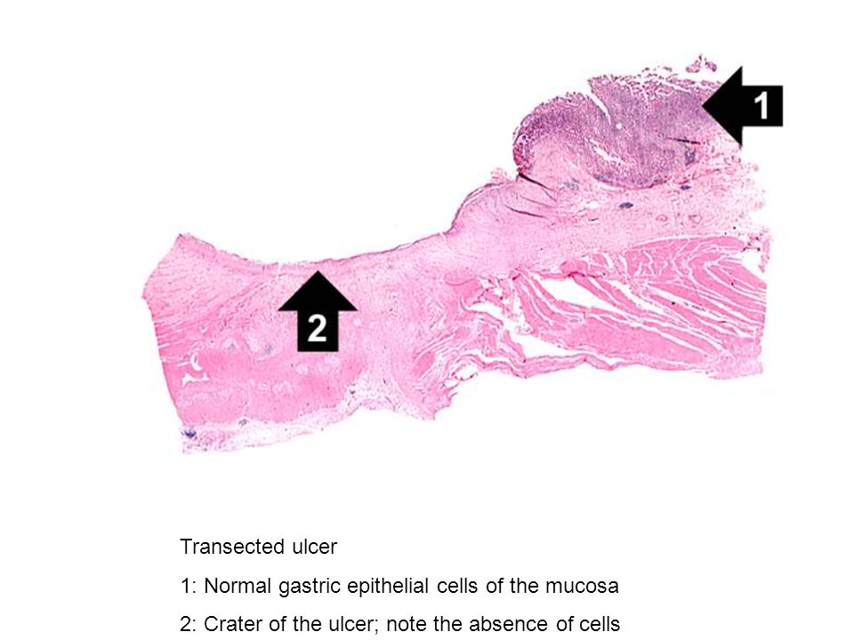 Transected ulcer 1: Normal gastric epithelial cells of the mucosa.