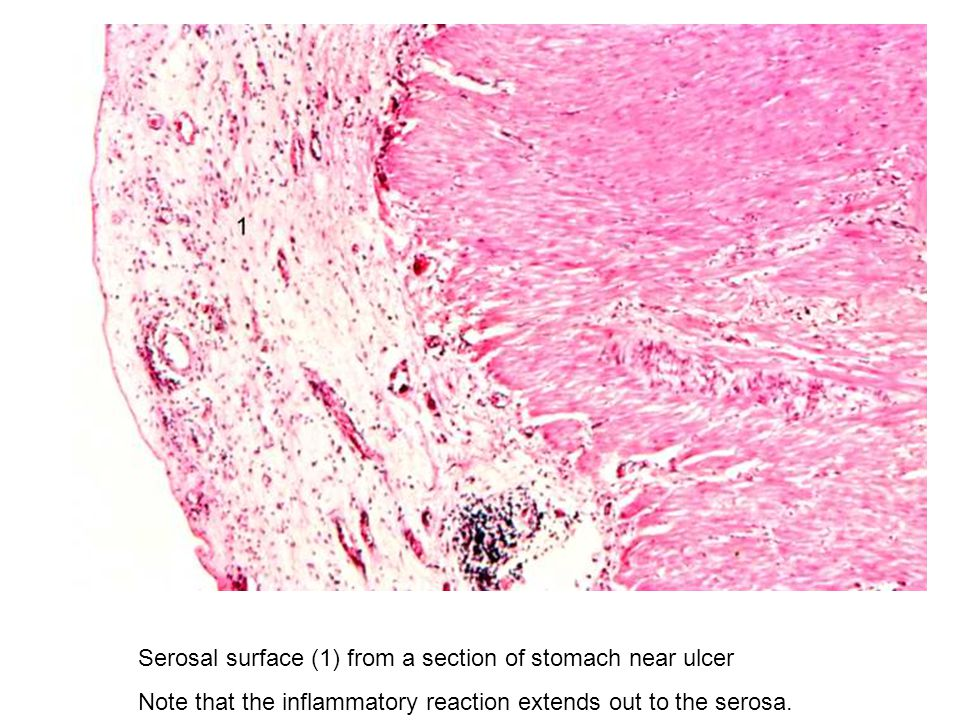Serosal surface (1) from a section of stomach near ulcer