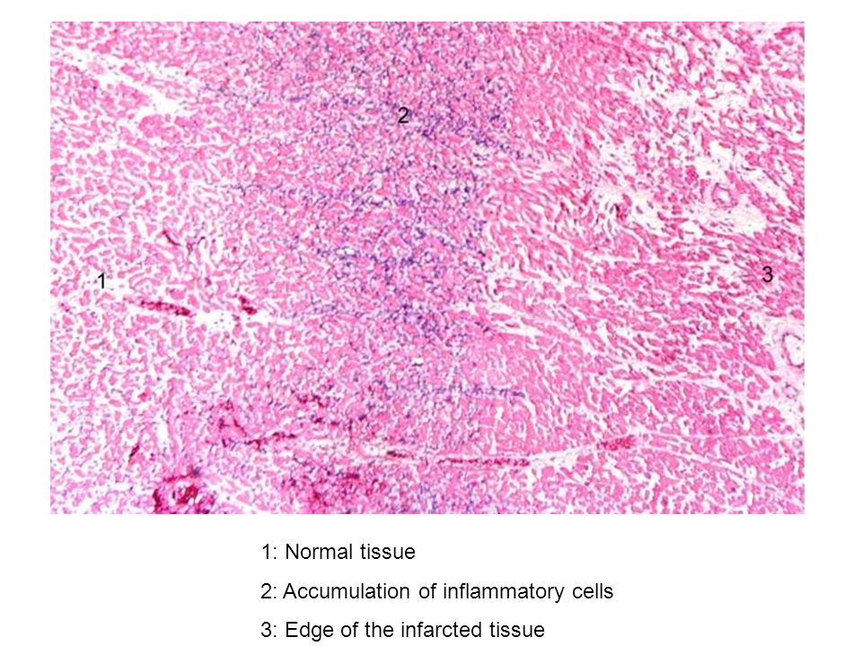 1: Normal tissue 2: Accumulation of inflammatory cells 3: Edge of the infarcted tissue
