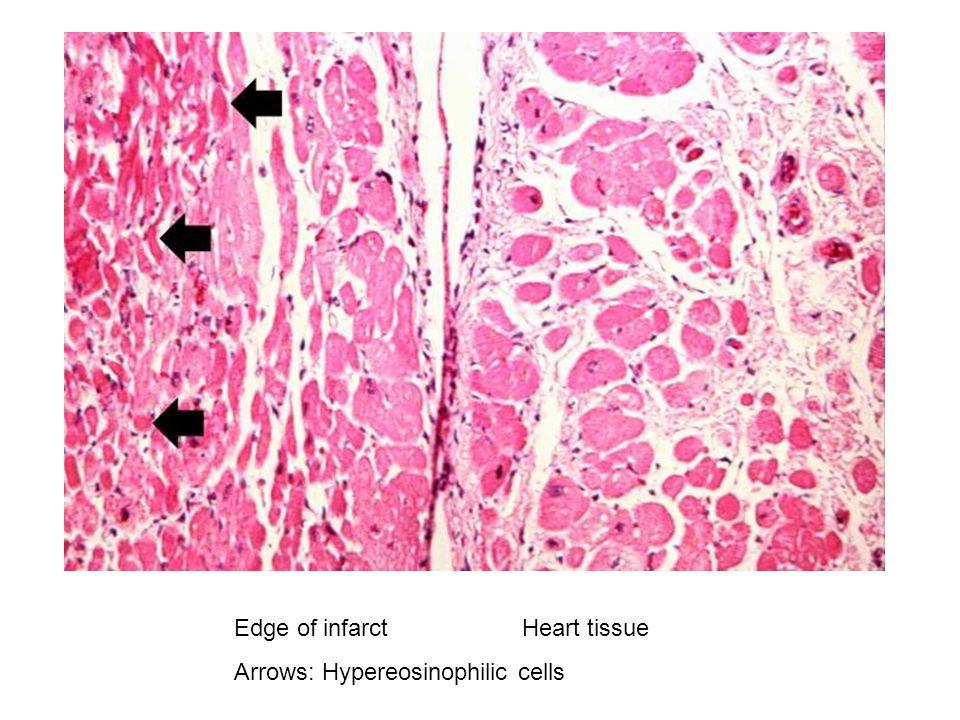 Edge of infarct Heart tissue